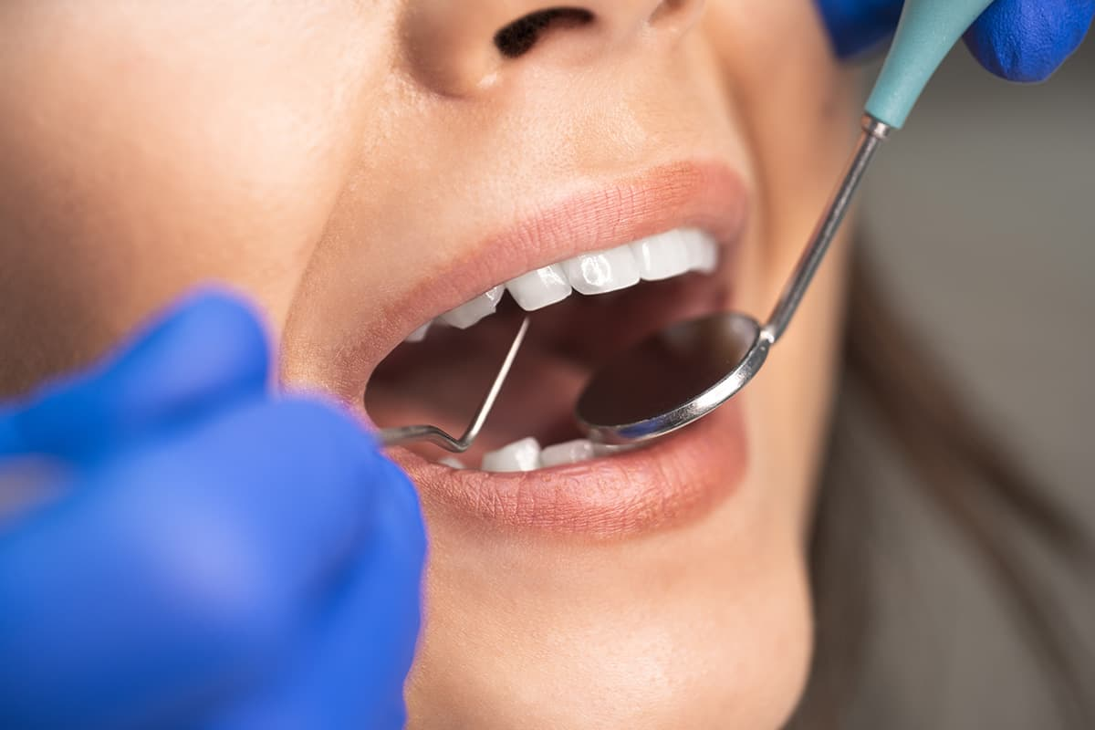 patient being worked on at dental appointment
