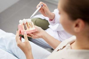 a woman holds a model of dental implants